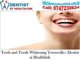 Are You Using The Correct Teeth Whitening Product