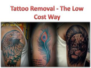 Tattoo Removal Chandigarh - The Low Cost Way