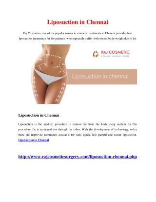 Liposuction in Chennai