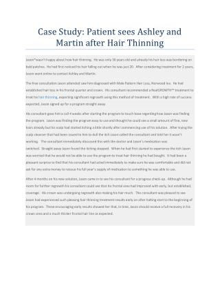 Case Study - Patient sees Ashley and Martin after Hair Thinning