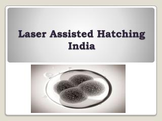 laser assisted hatching india