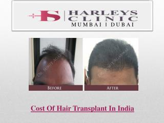 Cost Of Hair Transplant In India