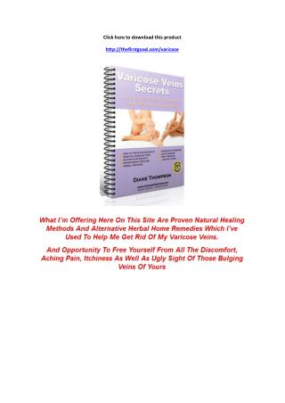 Varicose Veins Secrets Review - Worthy or Scam? - PDF Book Download