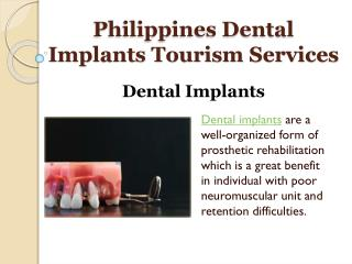 Philippines Dental Implants Treatment