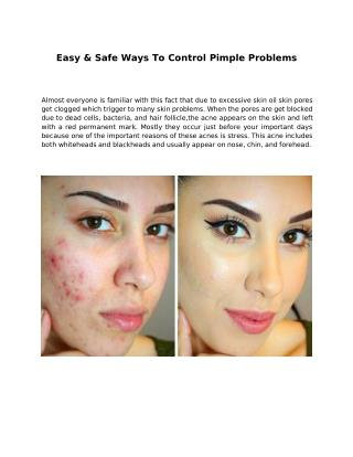 Easy & Safe Ways To Control Pimple Problems