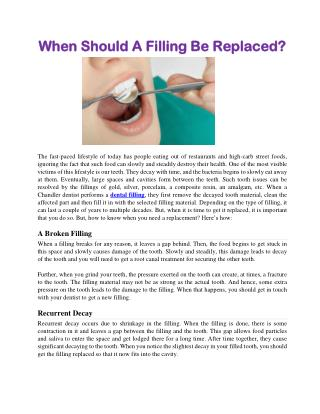 When Should A Filling Be Replaced?