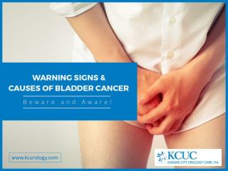 Bladder Cancer Causes, Symptoms and Signs