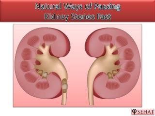 Natural Ways of Passing Kidney Stones | Sehat.com