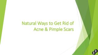 Natural ways to get rid of acne & pimple scars