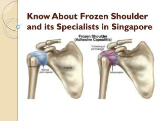 Know About Frozen Shoulder and its Specialists in Singapore