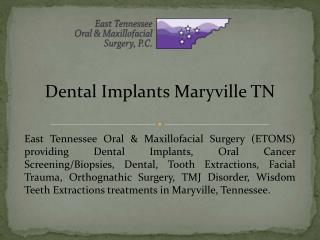Dental Implants Maryville TN