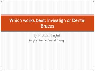 Invisalign or Dental Braces: Which is best for you?
