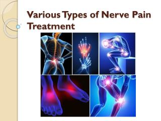 Various Types of Nerve Pain Treatment