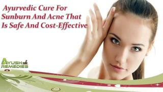 Ayurvedic Cure For Sunburn And Acne That Is Safe And Cost-Effective