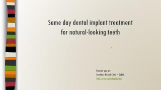 Same day dental implants in Dubai