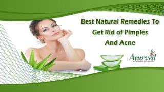 Best Natural Remedies To Get Rid of Pimples And Acne