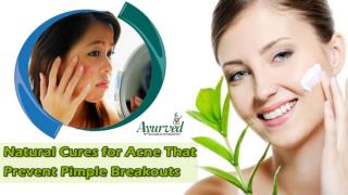 Natural Cures for Acne That Prevent Pimple Breakouts