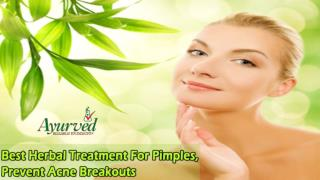Best Herbal Treatment For Pimples, Prevent Acne Breakouts