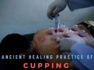 Ancient healing practice of cupping