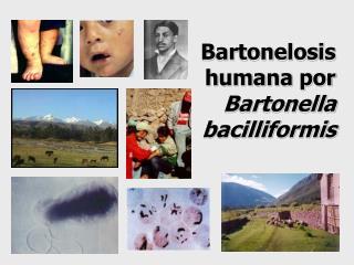 Bartonelosis   humana por Bartonella  bacilliformis