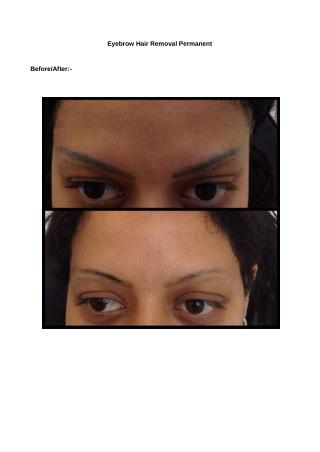 Permanent Eyebrow Removal Birmingham UK-Unwanted Tattoos