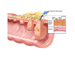 Barretts Esophagus, Barrett's Esophagus Hiatal Hernia, Barrett's Esophagus Epithelium