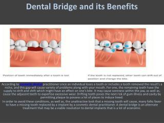 Dental Bridge And It's Benefits