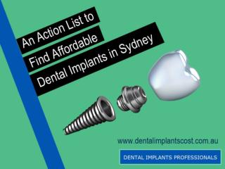 Action List to Find Affordable Dental Implants in Sydney