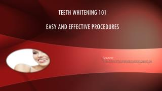 Teeth Whitening - Easy and effective procedure