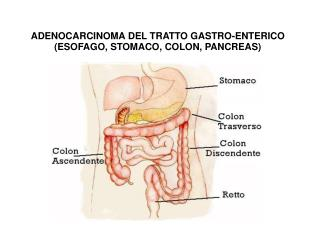 ADENOCARCINOMA DEL TRATTO GASTRO-ENTERICO ESOFAGO, STOMACO, COLON, PANCREAS