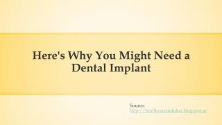 Here's why you might need a Dental Implant