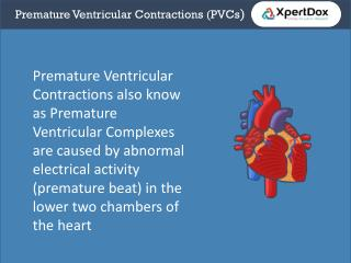 Premature ventricular contraction