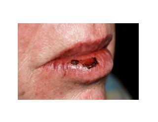 Cracks At Corner Of Mouth, Chelitis, Antifungal Cream For Angular Cheilitis, Treat Angular Cheilitis