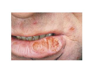 Cut In Corner Of Mouth, Angular Chelitis, Angular Cheilitis Pictures, Angular Cheilitis Vitamin