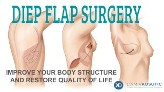 Know in Details About DIEP FlAP Surgery in Manchester