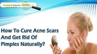 How To Cure Acne Scars And Get Rid Of Pimples Naturally?