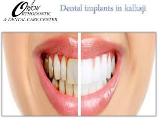 Dental implants in kalkaji