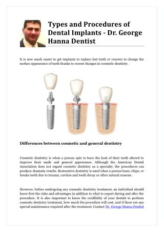 Types and Procedures of Dental Implants - Dr. George Hanna Dentist