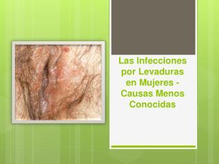 Las Infecciones por Levaduras en Mujeres - Causas Menos Conocidas