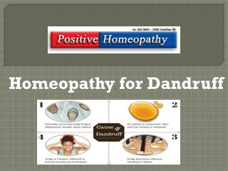 Homeopathy for Dandruff