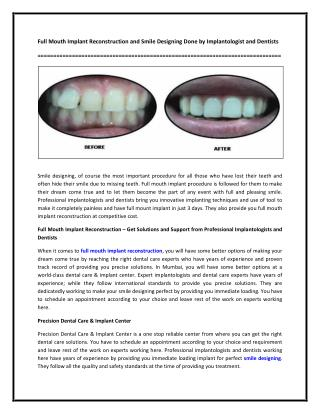 Full Mouth Implant Reconstruction and Smile Designing Done by Implantologist and Dentists