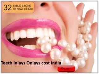 Teeth Inlays Onlays cost India