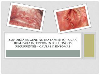 Candidiasis Genital Tratamiento – Cura Real para Infecciones por Hongos Recurrentes – Causas y Sintomas
