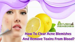 How To Clear Acne Blemishes And Remove Toxins From Blood?