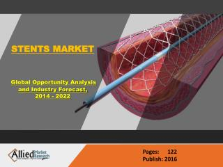 Stent Market Share & Research Analysis 2022