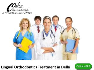 Lingual Orthodontics Treatment in Delhi