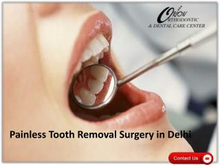 Painless Tooth Removal Surgery in Delhi