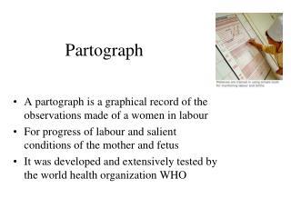 Partograph