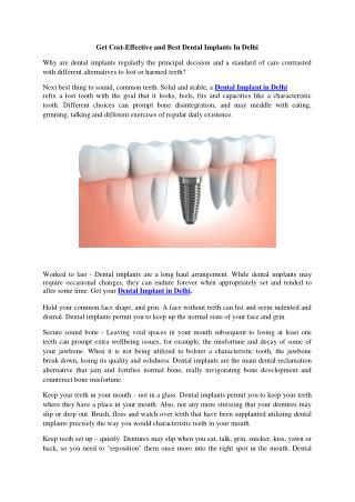 Get Cost-Effective and Best Dental Implants In Delhi