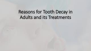 Reasons for tooth decay